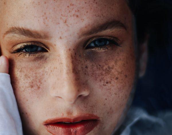 Beauty SOS: Djelotvorna rješenja za pomoć osjetljivoj koži sklonoj reakcijama